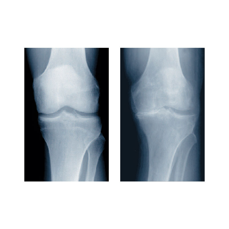 Arthrose im Kniegelenk Röntgenbild