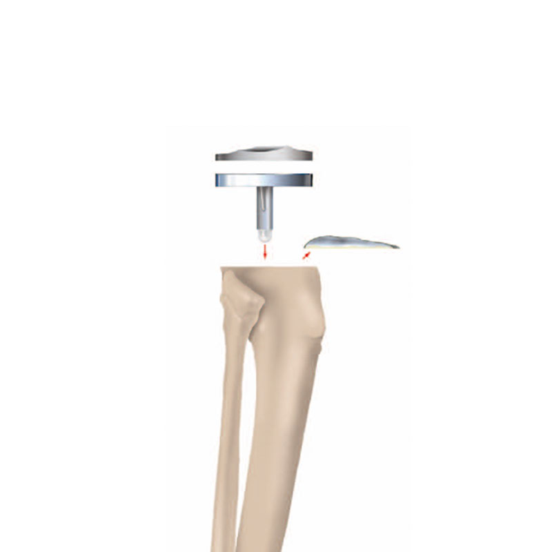 Künstliches Kniegelenk Unterschenkelteil